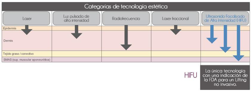 Cronología HIFU